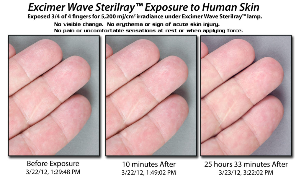 Excimer Wave Sterilray disinfection of fingers